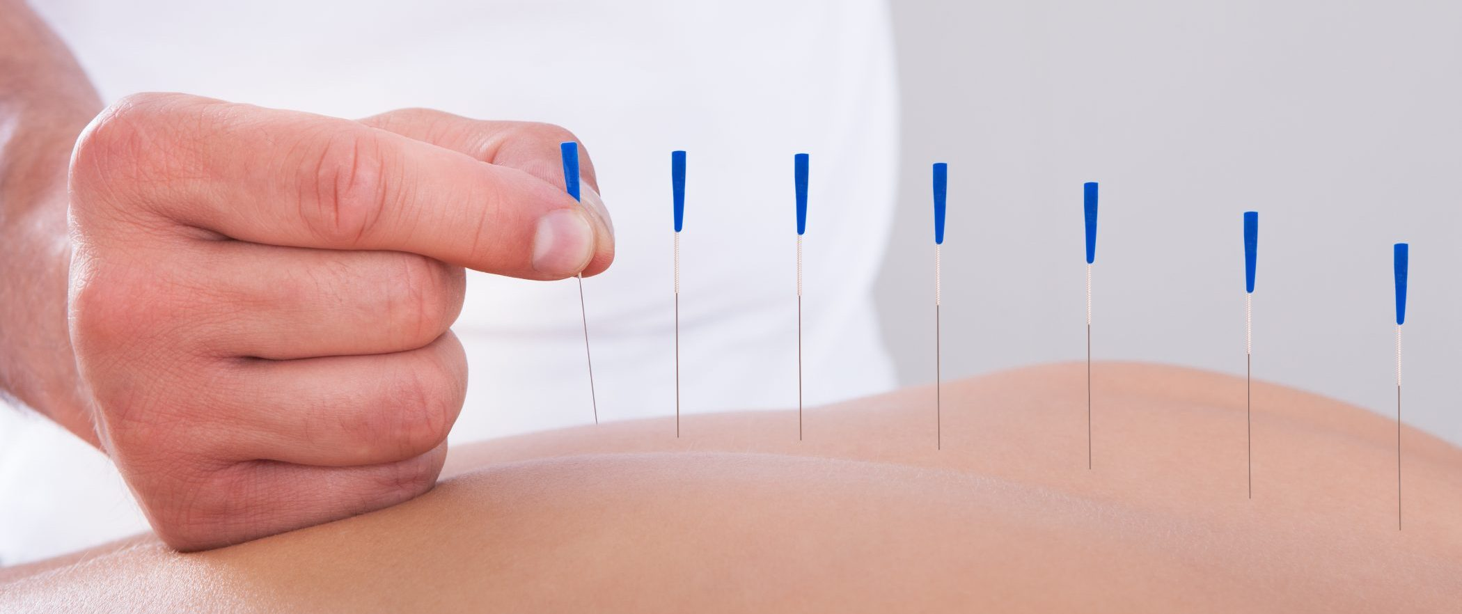 Acupuncture at L+A Healing Studio